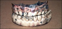 18th century porcelain dentures Image @CBBC