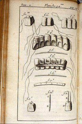 Fauchard, procedure for teeth restoration. Image @Wikimedia