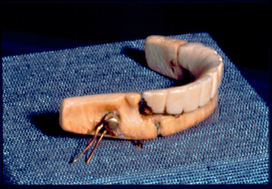 George Washington's dentures. Image @Samuel D. Harris National Museum of Dentistry, Baltimore