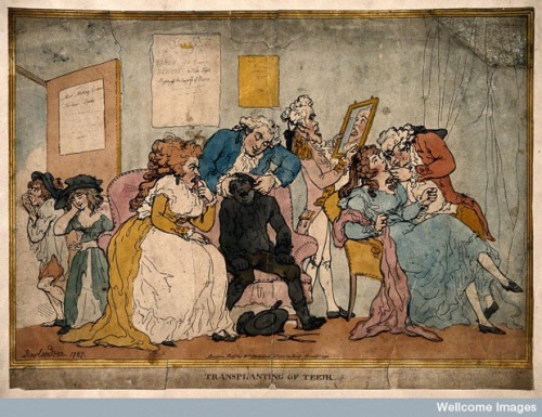 This print is by Thomas Rowlandson (1756-1827) and is dated 1787. It is a satirical comment upon the real practice of rich gentlemen and ladies of the 18th century paying for teeth to be pulled from poor children and transplanted in their gums. Image @Children and Youth in History