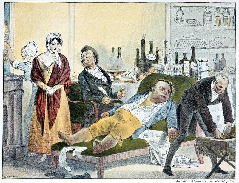 Mad medical procedures from the past 29